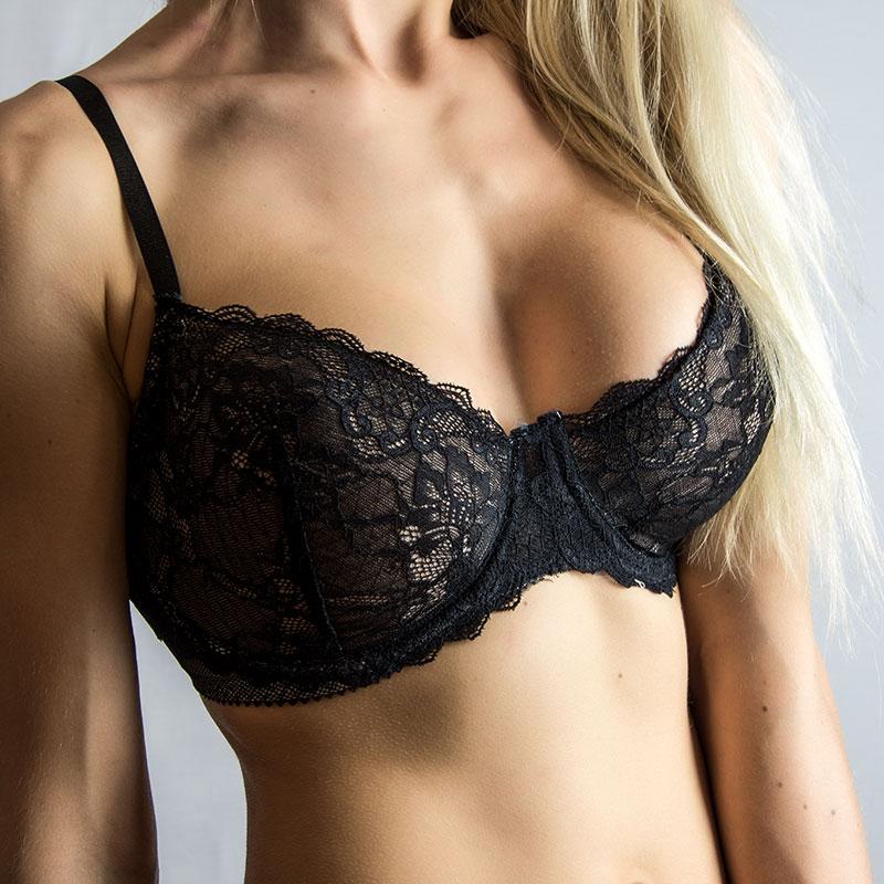 breast implantation